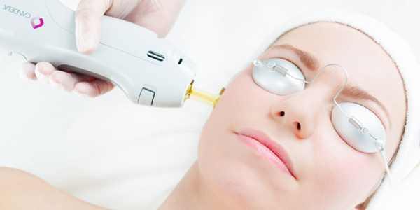 انواع درمان جوش صورت (آکنه) و عوارض جانبی