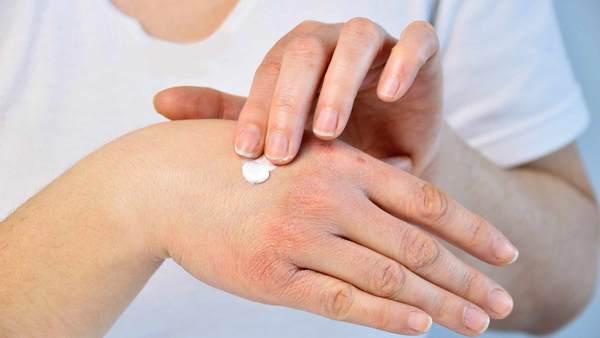 درمان پسوریازیس با 10 روش خانگی