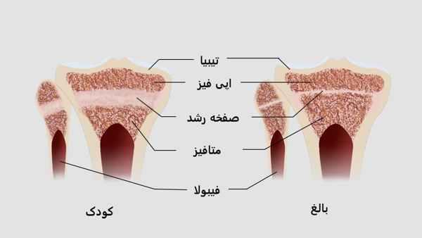 آیا بدنسازی قد را میسوزاند و باعث توقف رشد قد می شود