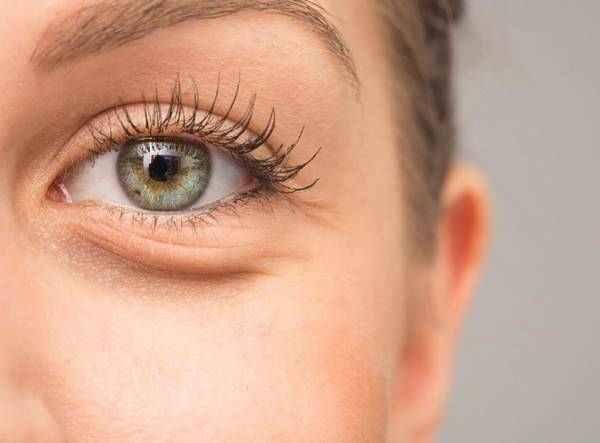 درمان، رفع پف و تیرگی دور چشم